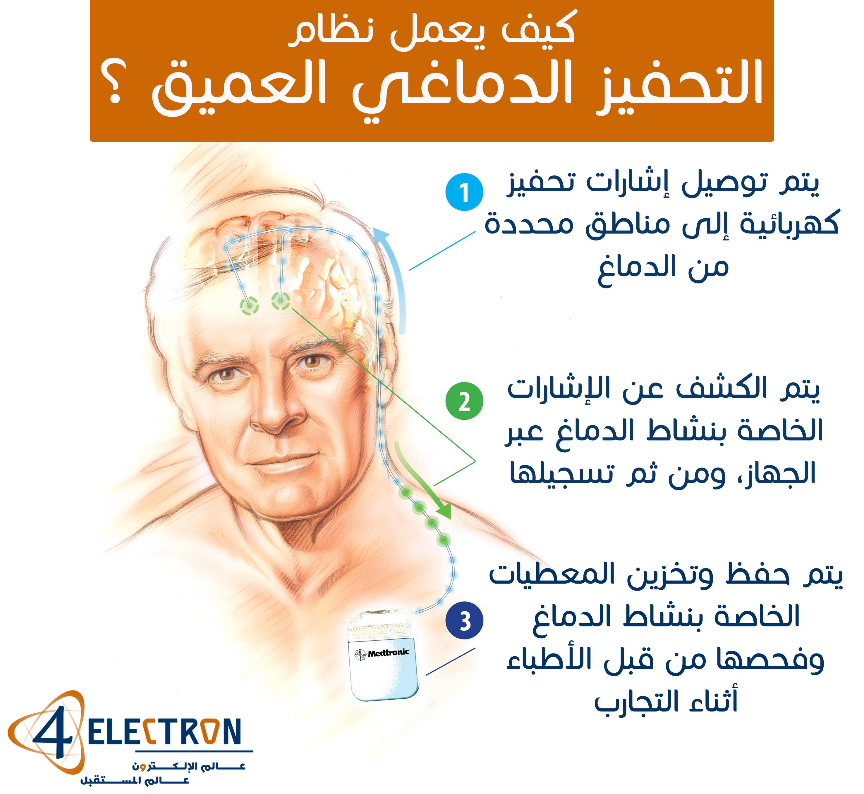 deep-brain-stimulator-4electron